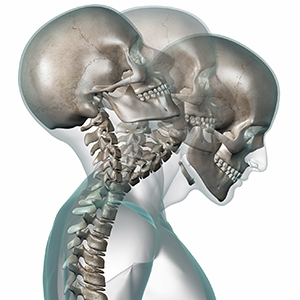 Whiplash Injury Information